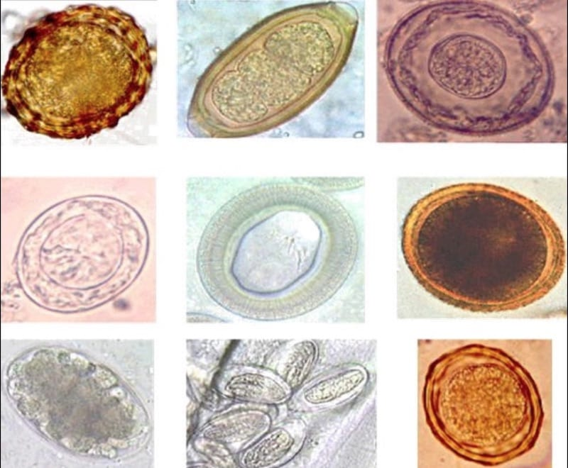 Different ova seen under the microscope