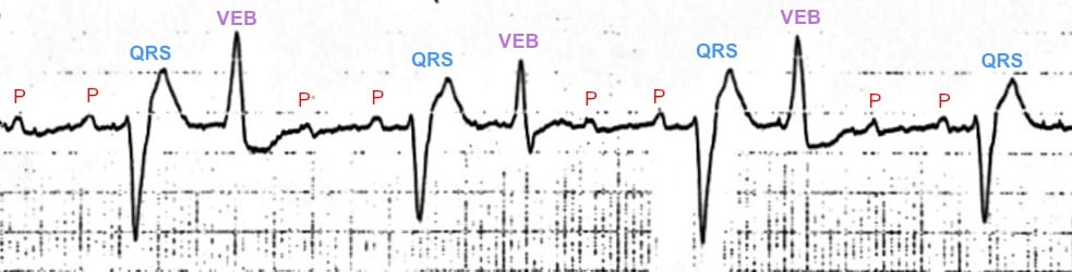 Digoxin Toxicity ECG Rhythm strip