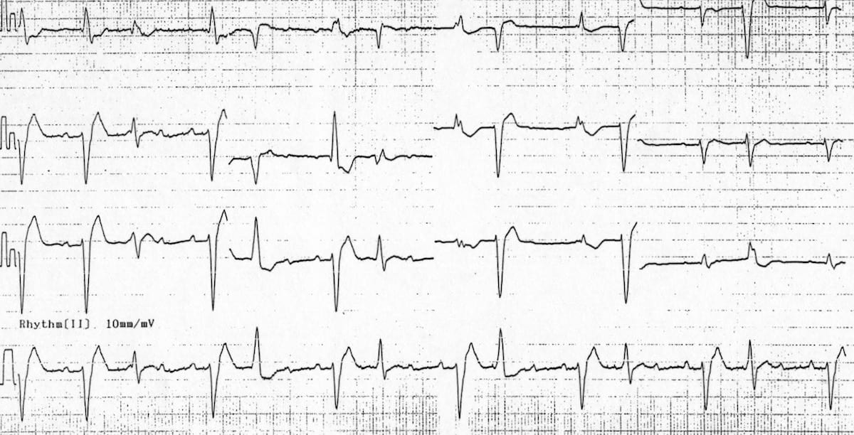 Digoxin Toxicity atrial tachycardia with block and frequent PVC