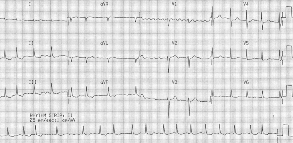 Digoxin effect AF fibrillatory waves V1 2