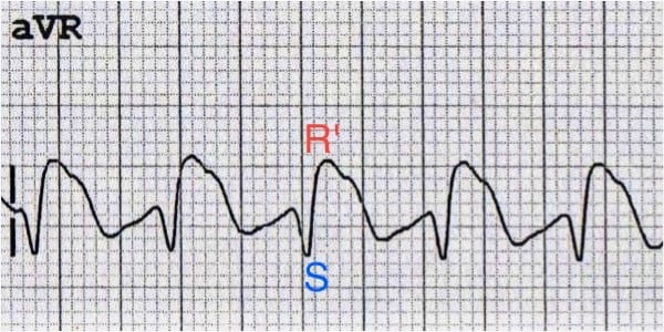 Dominant secondary R wave (R') in aVR