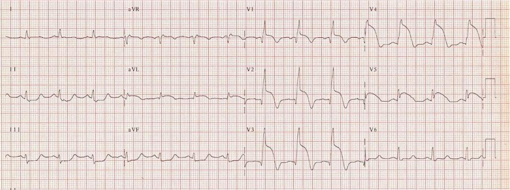 ECG Proximal LAD Acute anteroseptal STEMI