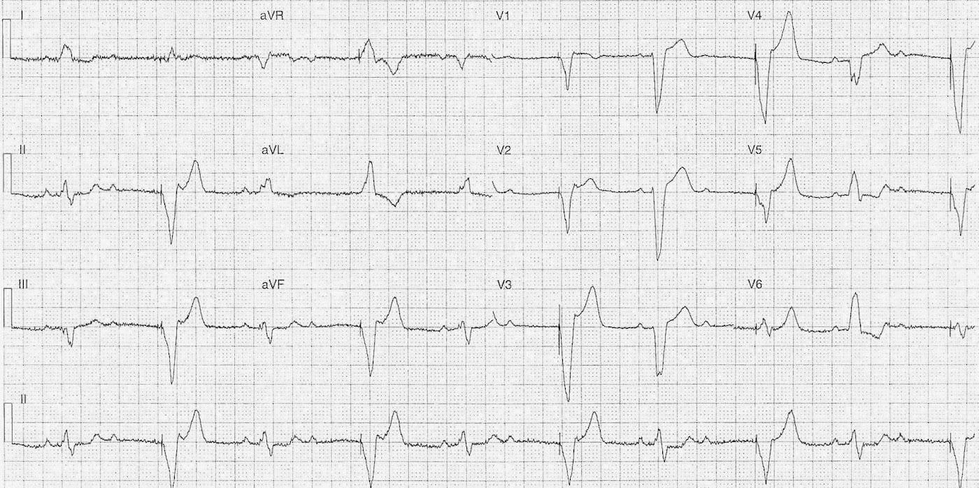 ECG 079 LITFL Top 100 EKG