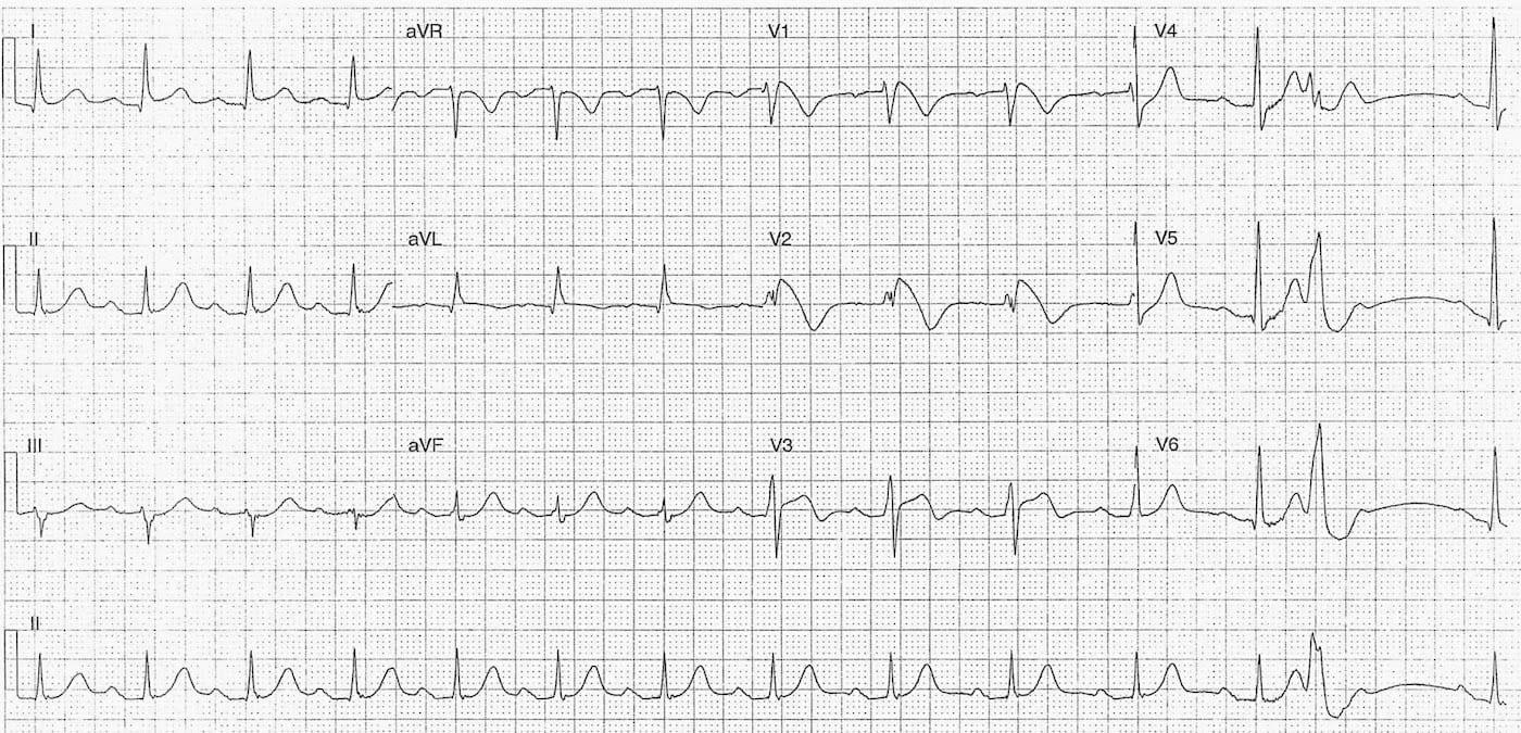 ECG 080 LITFL Top 100 EKG