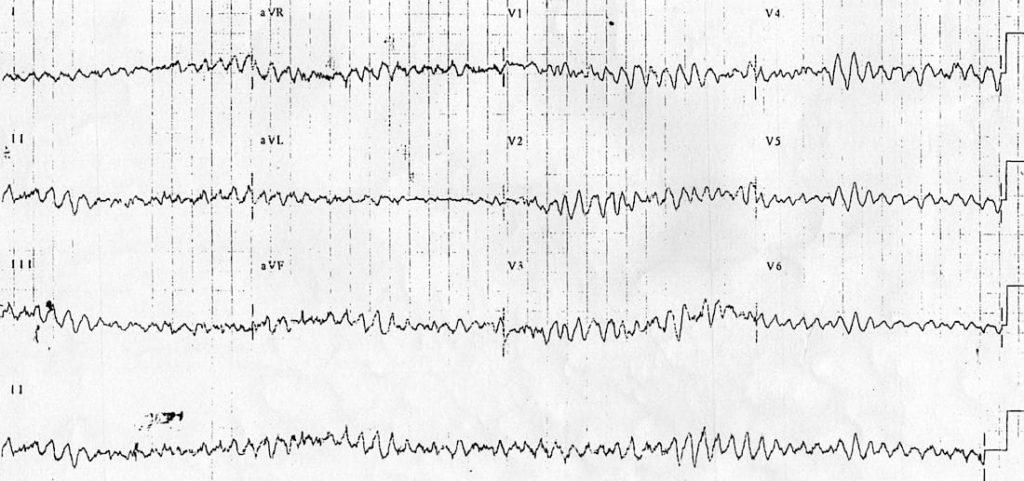 ECG 12 lead VF ventricular fibrillation