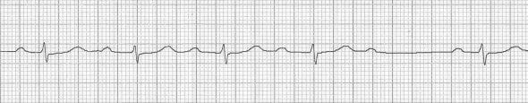 ECG 2nd Degree AV block Mobitz I Wenckebach phenomenon