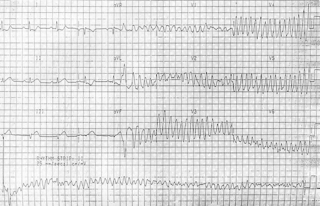 photograph relating to Printable Ekg Strips identify Ventricular Fibrillation (VF) LITFL ECG Library Prognosis