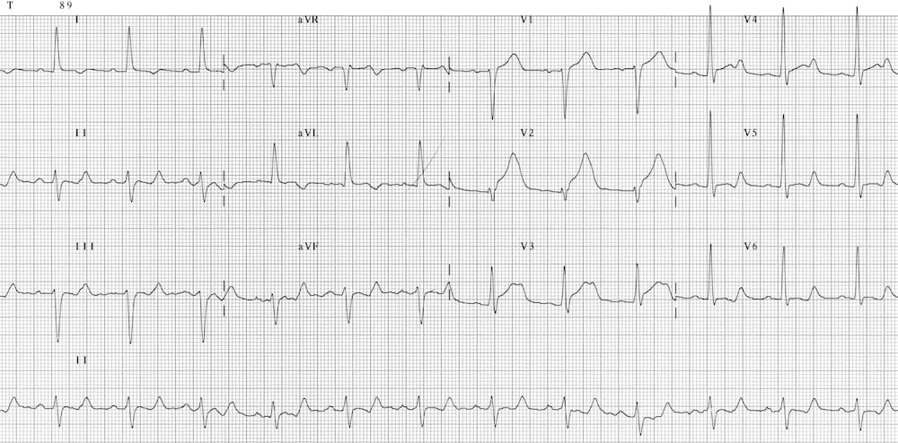 ECG AMI anteroseptal Prolonged Qtc