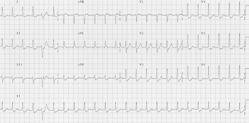 ECG AVNRT AV-nodal re-entry tachycardia ST depression 2