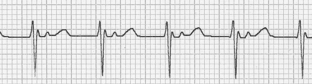 ECG AVNRT QRSPT retrograde P