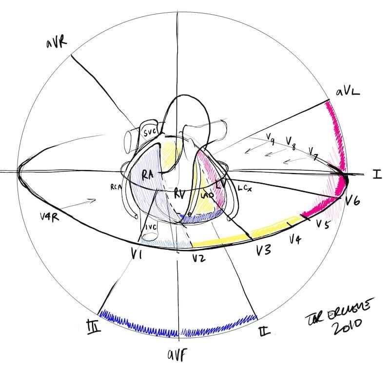 Mi Localization  U2022 Litfl Medical Blog  U2022 Ecg Anatomy Basics