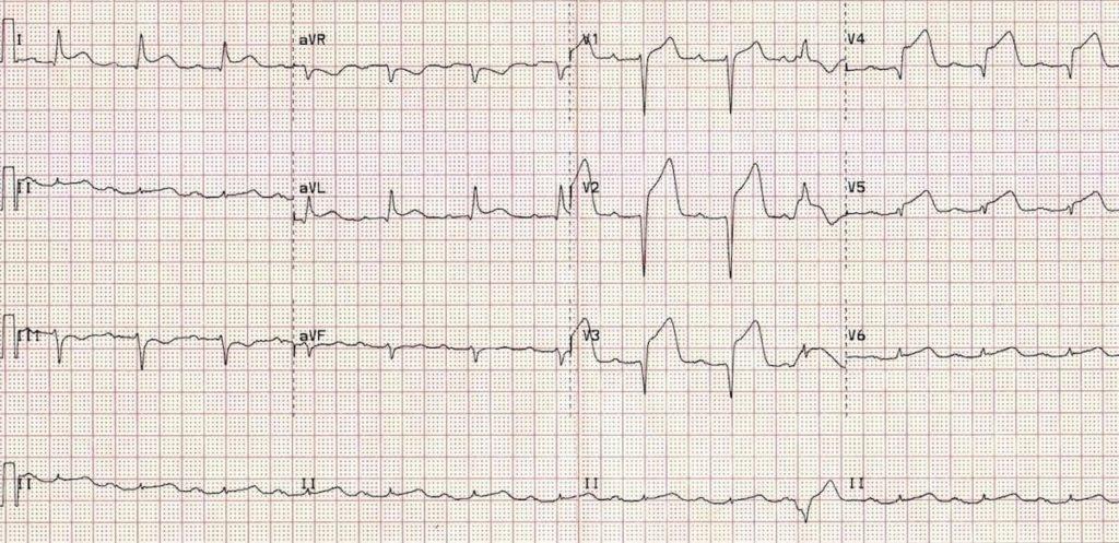 ECG Anterior STEMI Evolving 2