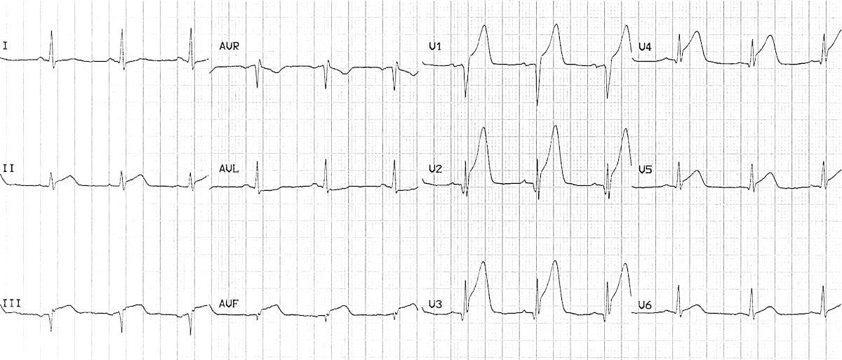 ECG Anterior-inferior STEMI