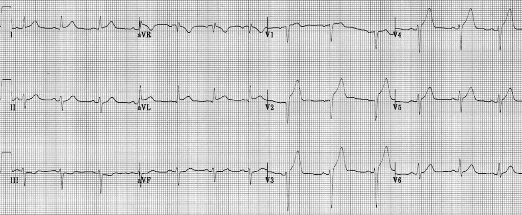 ECG Anterolateral AMI STEMI 2