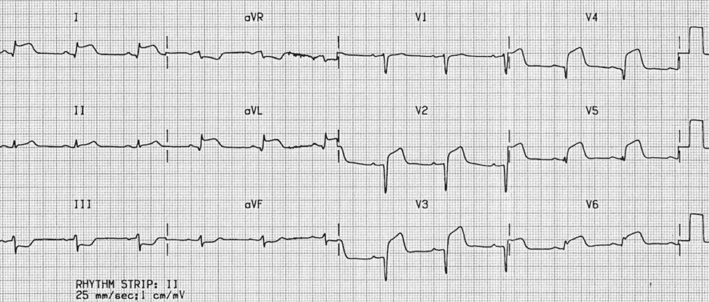 ECG Anterolateral STEMI 1