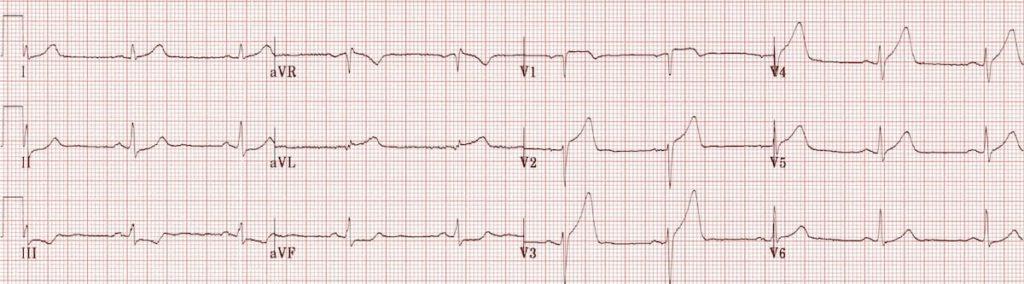 ECG Anterolateral STEMI Hyperacute