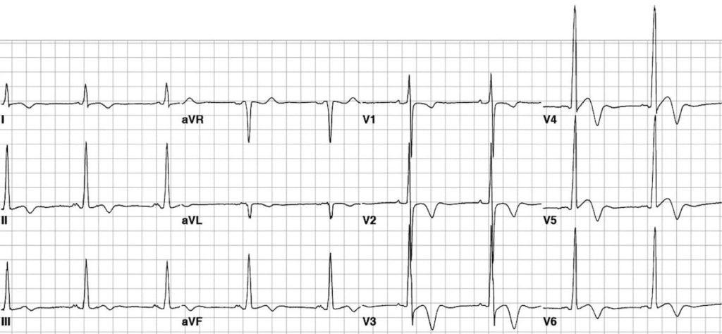 ECG Apical HCM HOCM