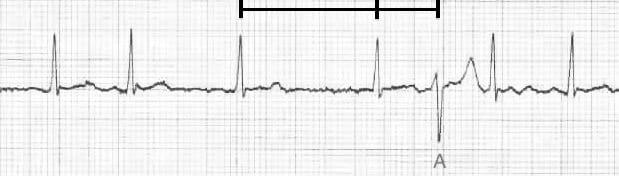 ECG Ashman aberrancy 5