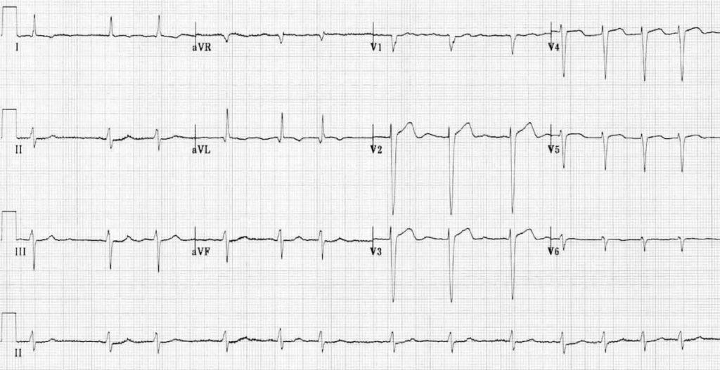 ECG Atrial Fibrillation 3