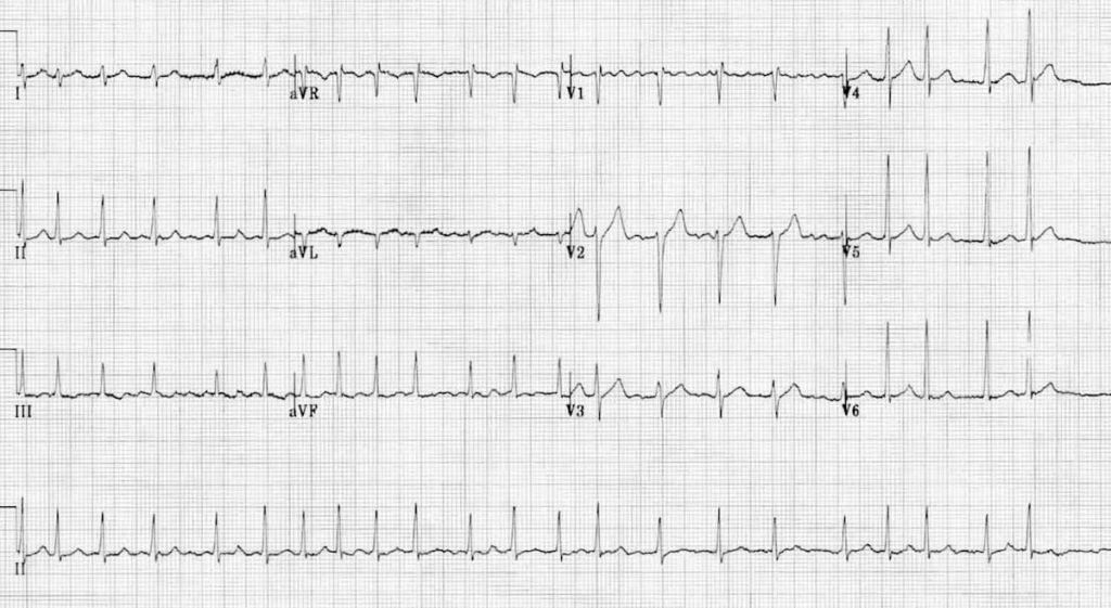 ECG Atrial Fibrillation 4