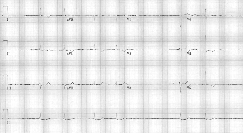 ECG Atrial Fibrillation Slow Ventricualr response