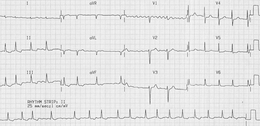 ECG Atrial Fibrillation coarse flutter waves