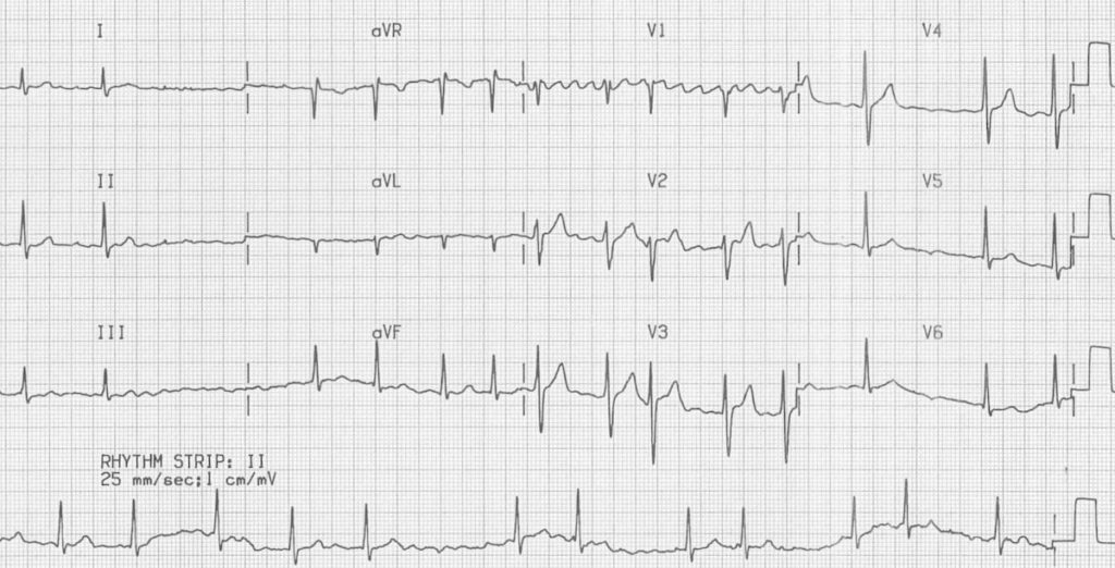 ECG Atrial Fibrillation coarse flutter waves 2 2