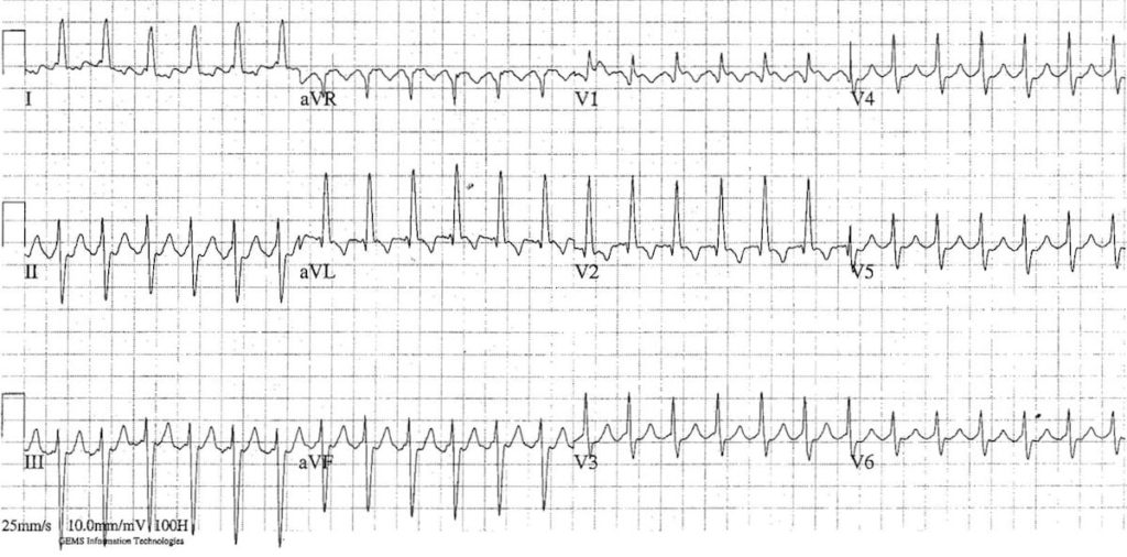 ECG Atrial Flutter 2:1 block
