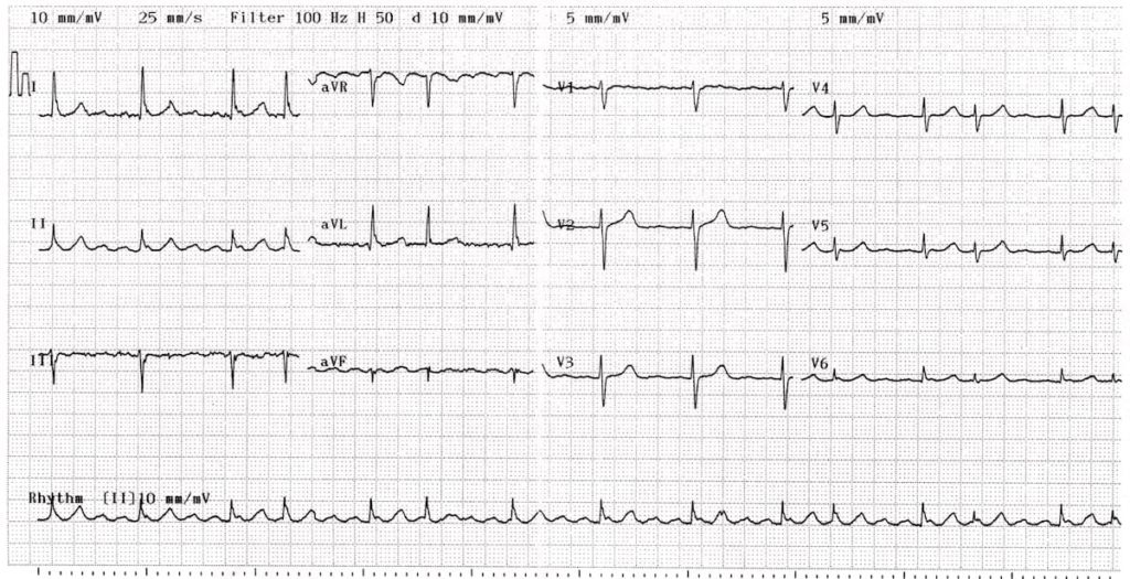 ECG Atrial Flutter variable block 2:1 4:1