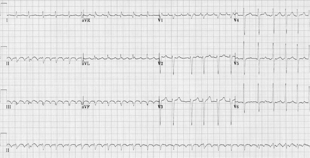 ECG Atrial Flutter with 2:1 Block 1