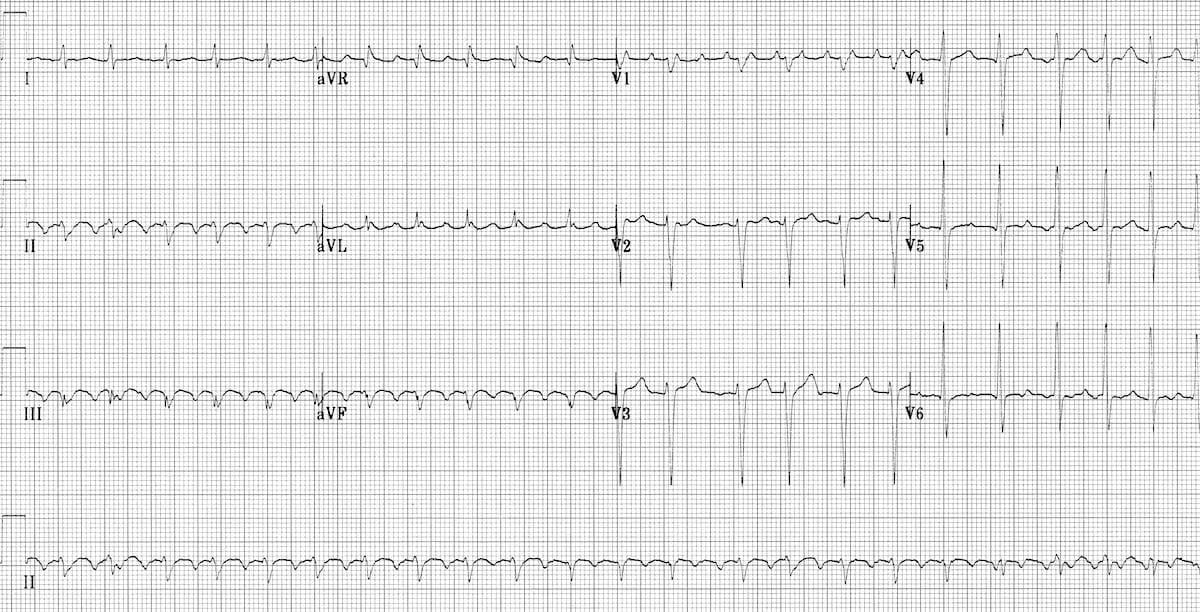 Atrial Flutter • LITFL Medical Blog • ECG Library Diagnosis