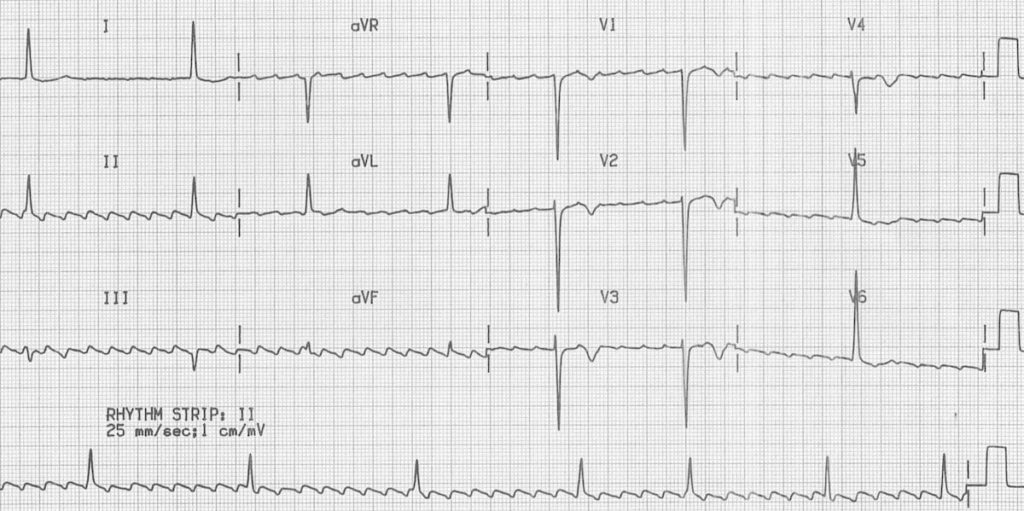 ECG Atrial Flutter with High-Grade AV Block