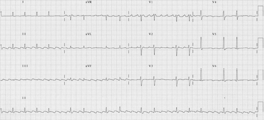 ECG Atrial Flutter with Variable Block