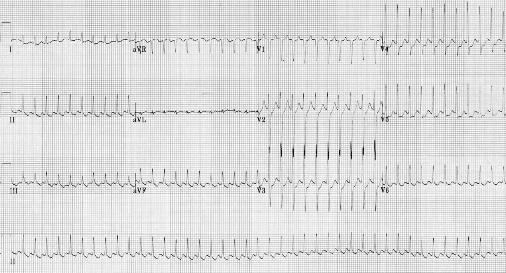 ECG Atrial flutter 1:1 block
