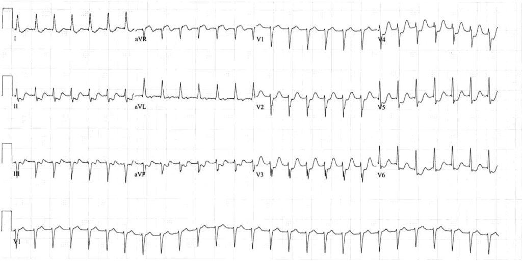 ECG Atrial flutter 2-1 block