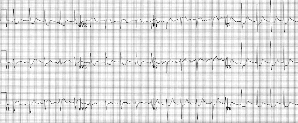 ECG Atrial flutter LMCA mimic