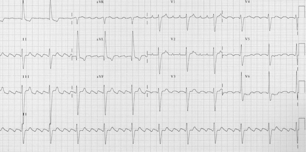 Atrial flutter with 4:1 block
