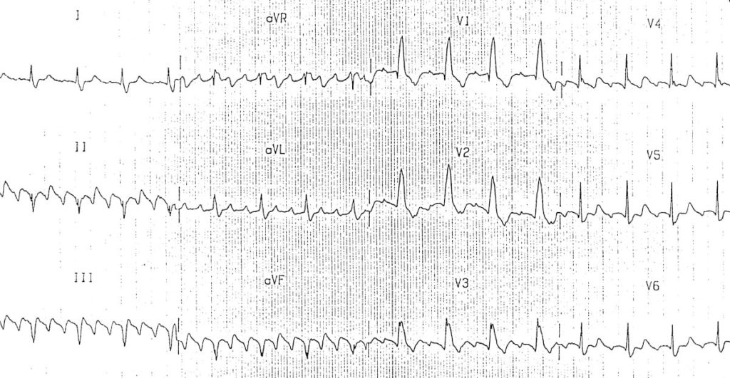 ECG Atrial flutter with Negative flutter waves