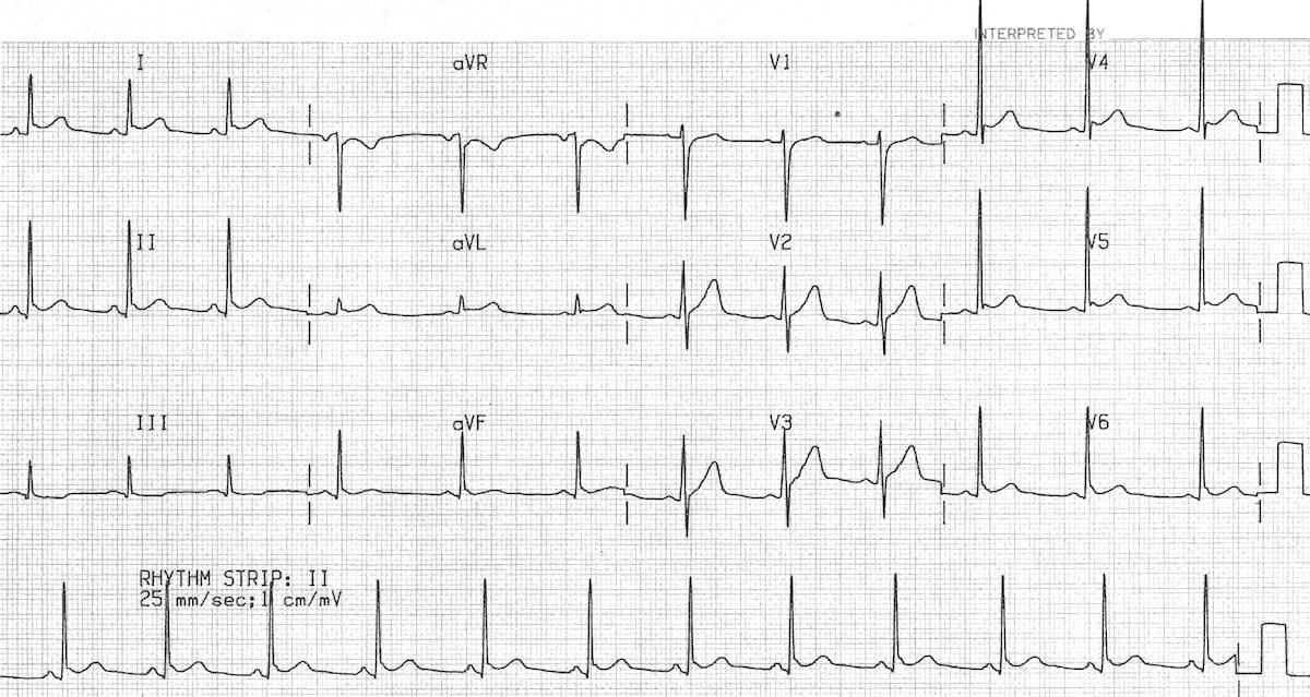 ECG Baseline Benign early repolarisation BER 6