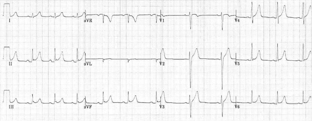 ECG Benign Early Repolarisation BER 1