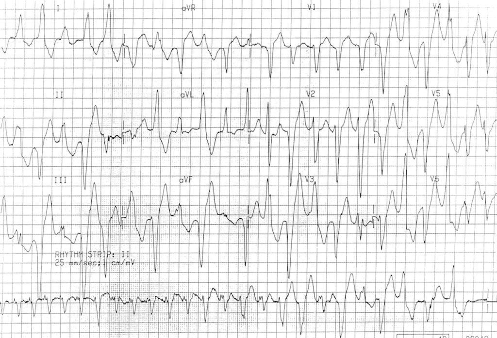 ECG Bidirectional Ventricular Tachycardia BVT 3