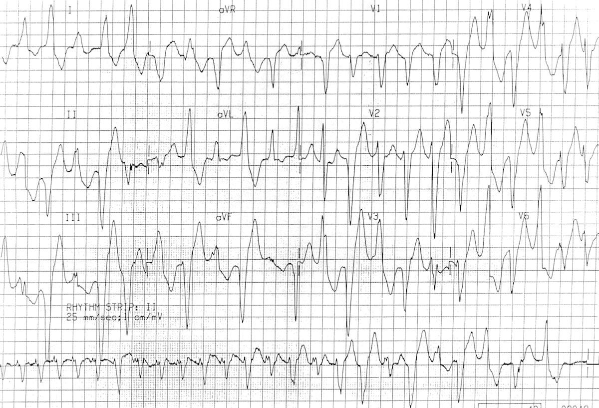 Bidirectional Ventricular Tachycardia Bvt Litfl Ecg Library
