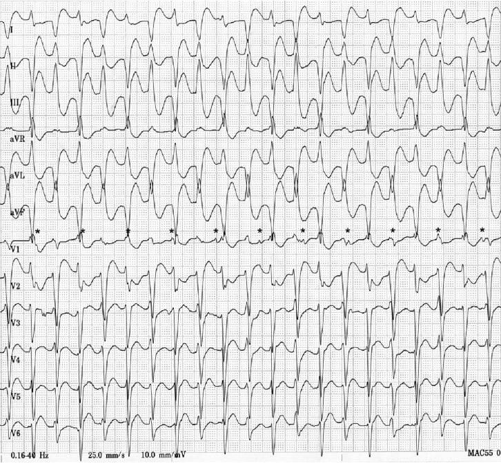 ECG Bidirectional Ventricular Tachycardia BVT 4