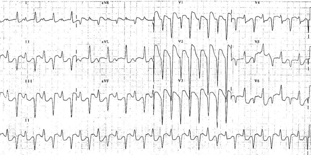 ECG Bidirectional ventricular tachycardia