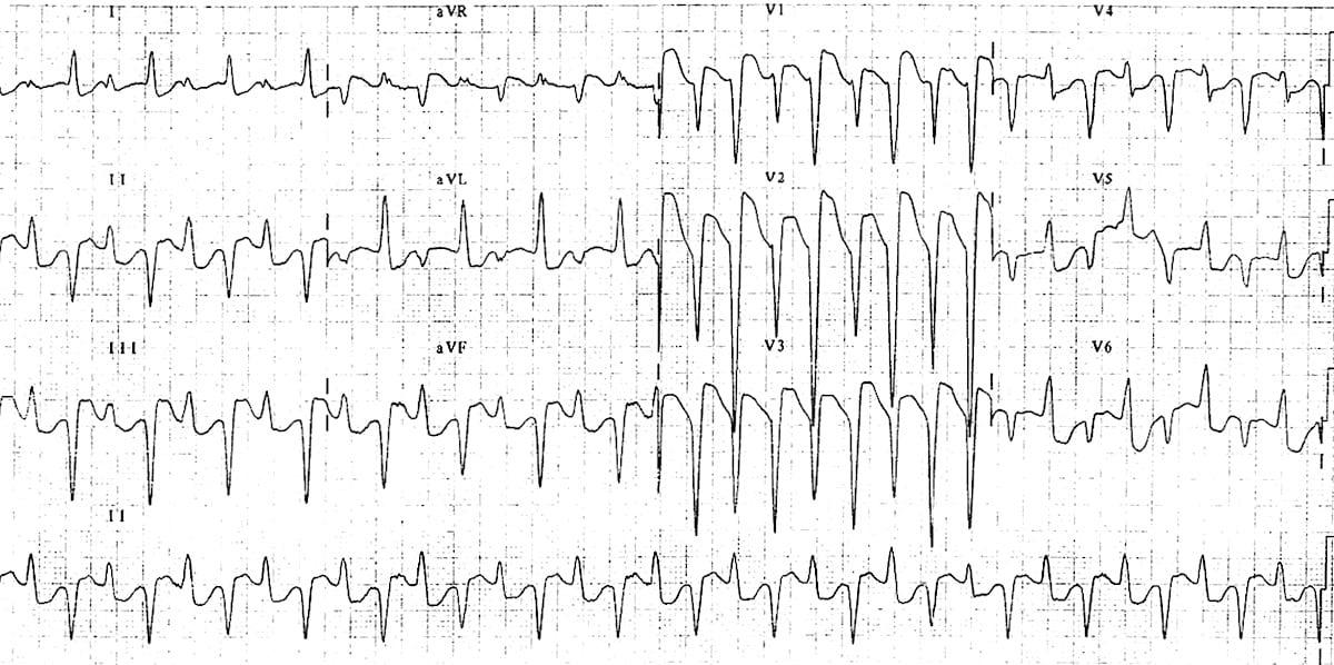 ECG Bidirectional ventricular tachycarida