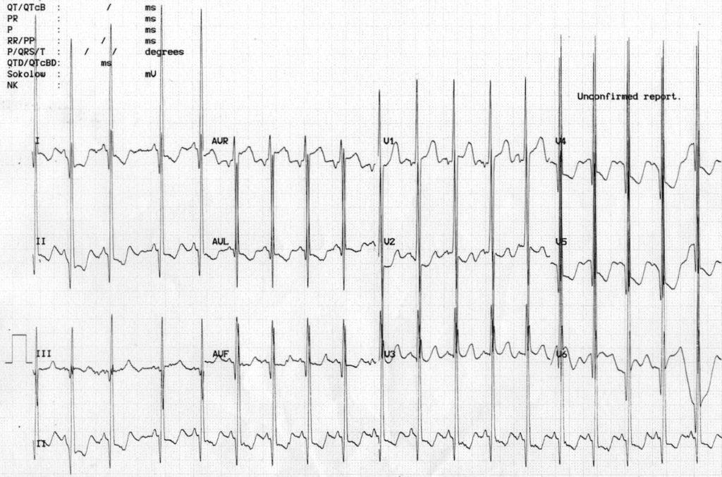 ECG Biventricular hypertrophy Katz-Wachtel phenomenon