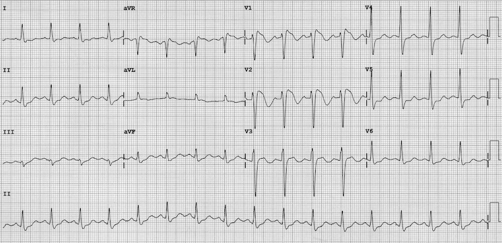 ECG Brugada Syndrome Type 1