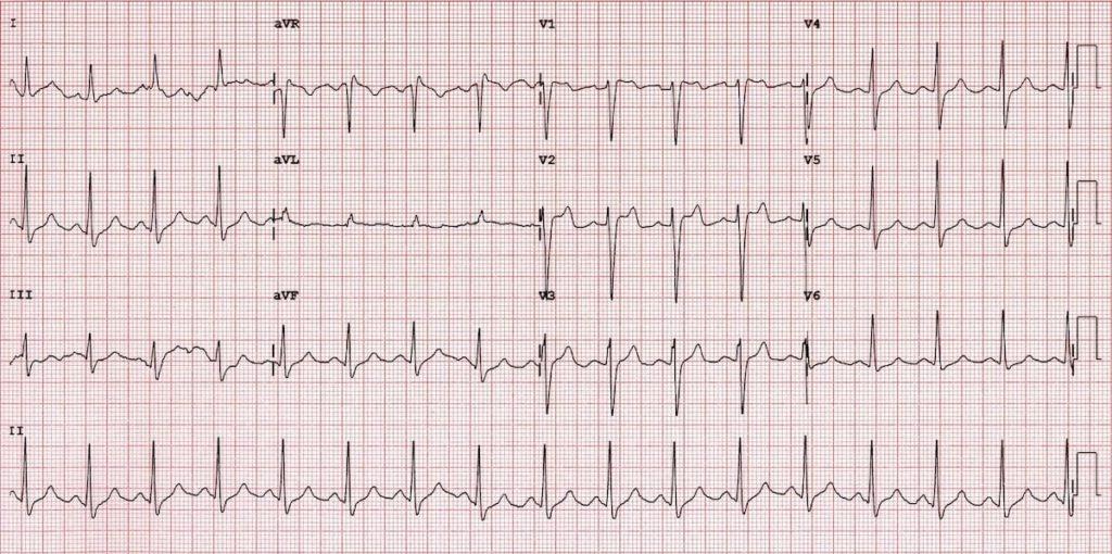 ECG Brugada syndrome Type 2