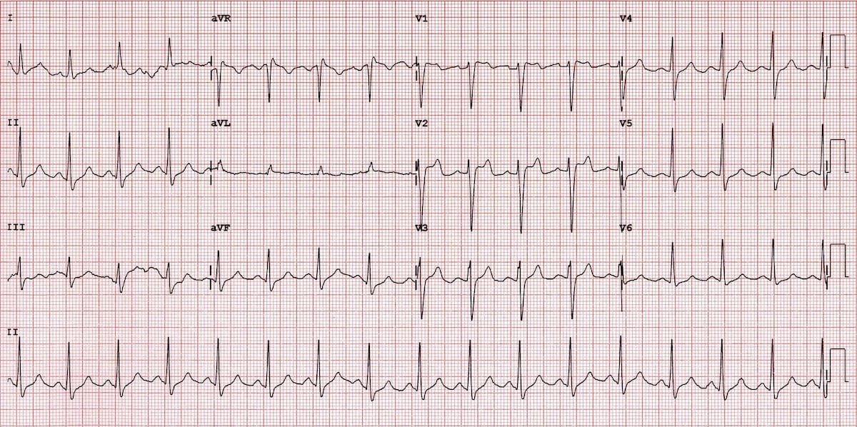 ECG Brugada syndrome Type 2