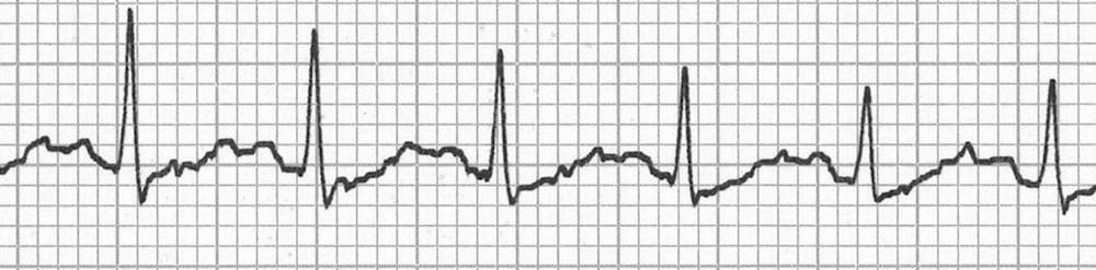 ECG Camel hump hidden p waves